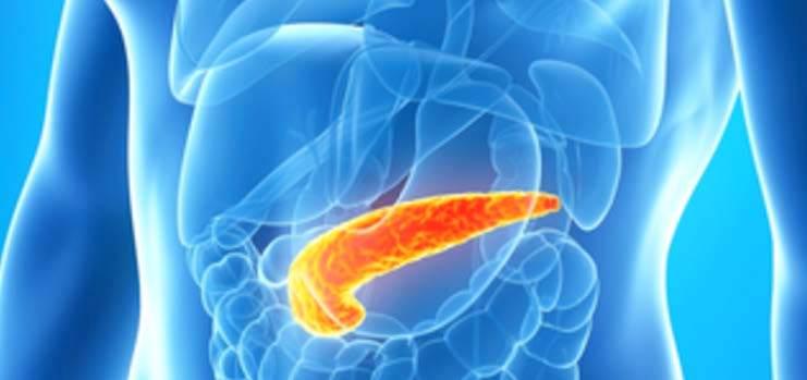 صورة اختبار جديد للكشف عن سرطان البنكرياس