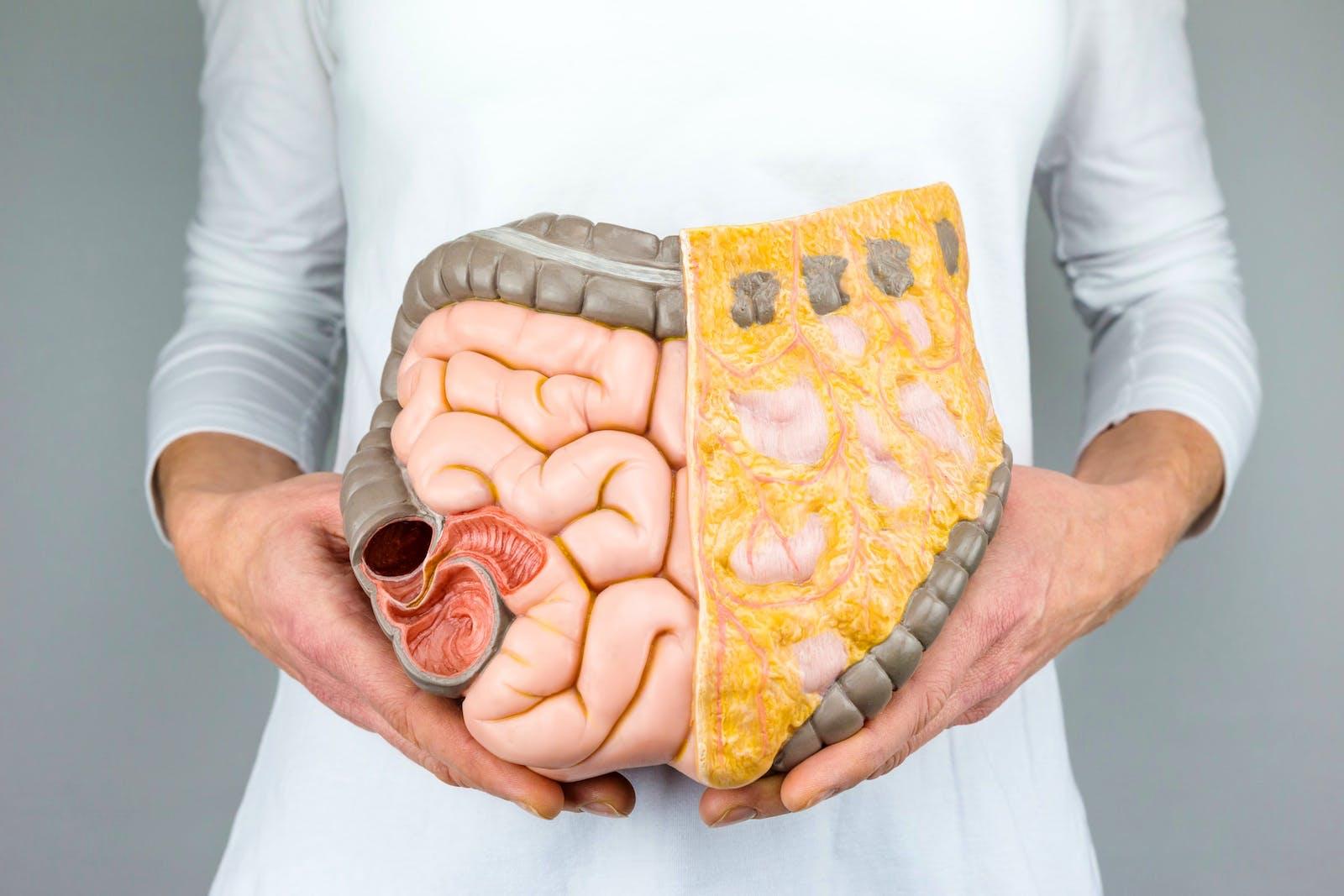 صورة دراسة بريطانية تكشف علاقة اللحوم الحمراء بسرطان الأمعاء