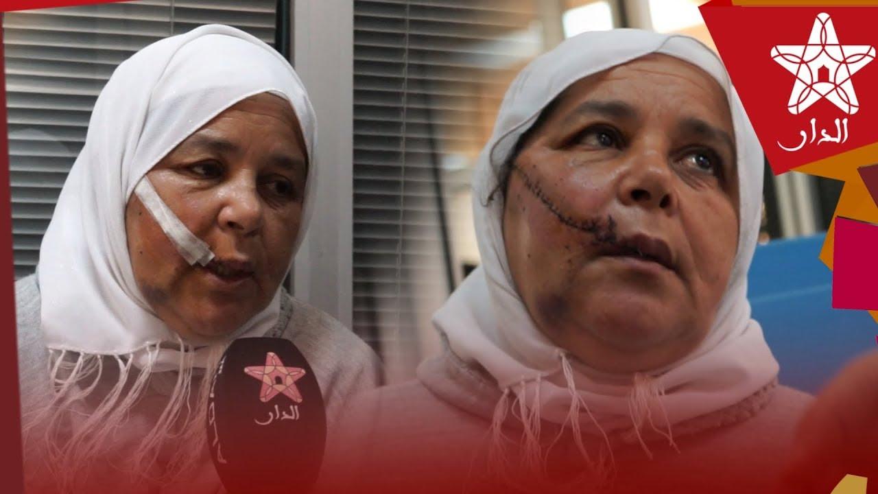 Photo of المرأة المسنة التي تعرضت للاعتداء في وجهها عند الدكتور التازي.. وهذا ما صرحت به