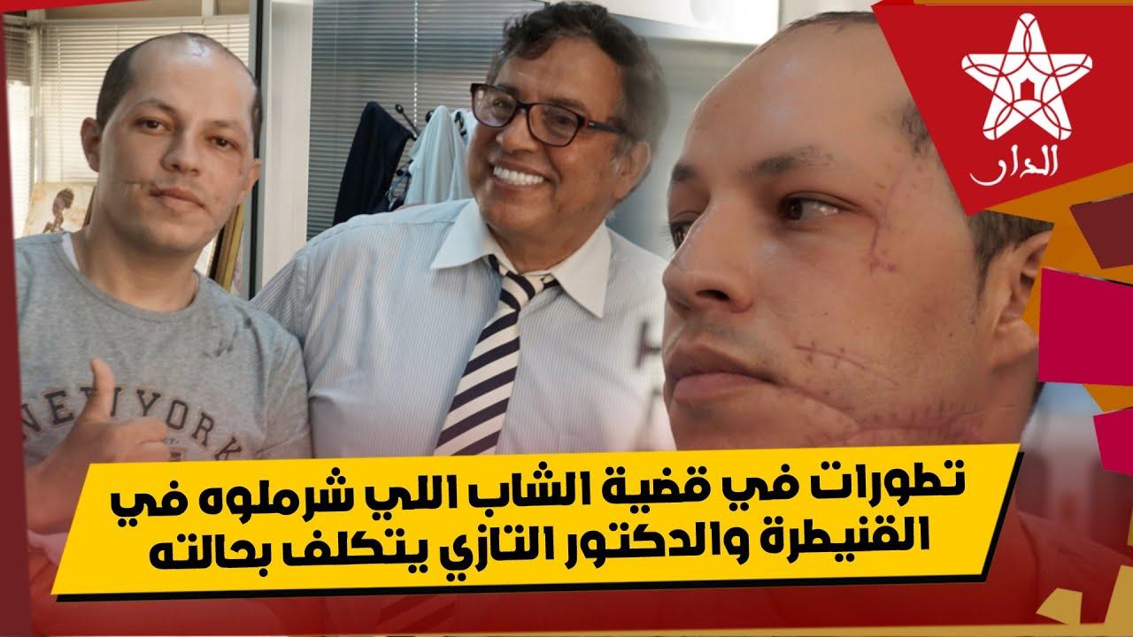 Photo of تطورات في قضية الشاب اللي شرملوه نهار العيد في القنيطرة والدكتور التازي خبير التجميل يتكلف بحالته
