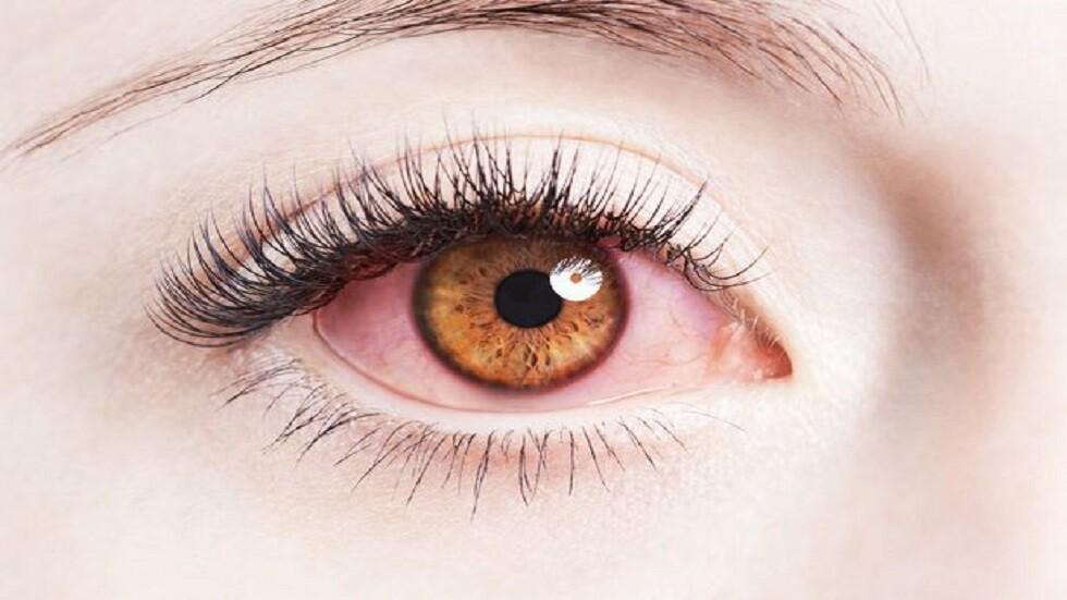 صورة كيف تحمي عينيك من الضرر الناجم عن استخدام الهواتف الذكية؟