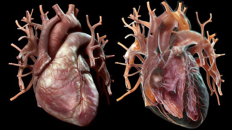 صورة نقلة طبية.. أعضاء الخنازير صالحة لأجساد البشر