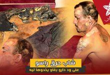صورة شاب حرق راسو على ود دارو بغاو دوهليه