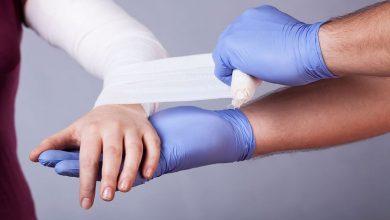 صورة علاجات منزلية شائعة تفاقم أضرار الحروق