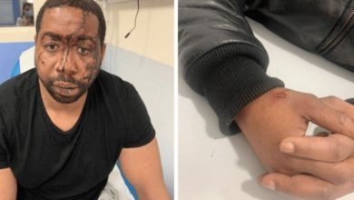 صورة الاعتداء على منتج موسيقي في باريس: أربعة عناصر من الشرطة قيد التحقيق والحبس الاحتياطي لثلاثة منهم