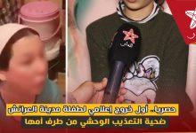 صورة حصريا.. بالدموع أول خروج إعلامي لطفلة العرائش ضحية التعذيب من طرف أمها وشهادتها تقلب جميع الروايات